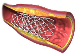 L-arginin pospešuje proizvodnjo dušikovega oksida, dušikov oksid pa poskrbi za sproščanje žil